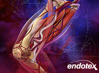 portfolio-thumb-endotex